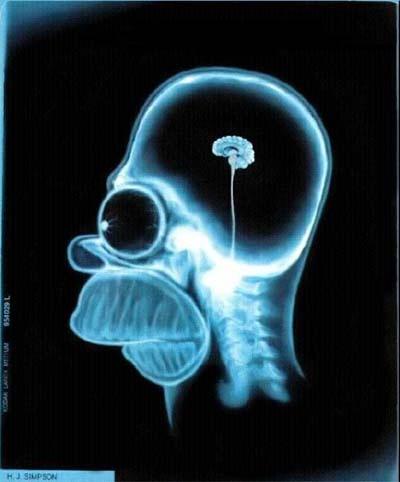 Cervello dell'uomo sapiens